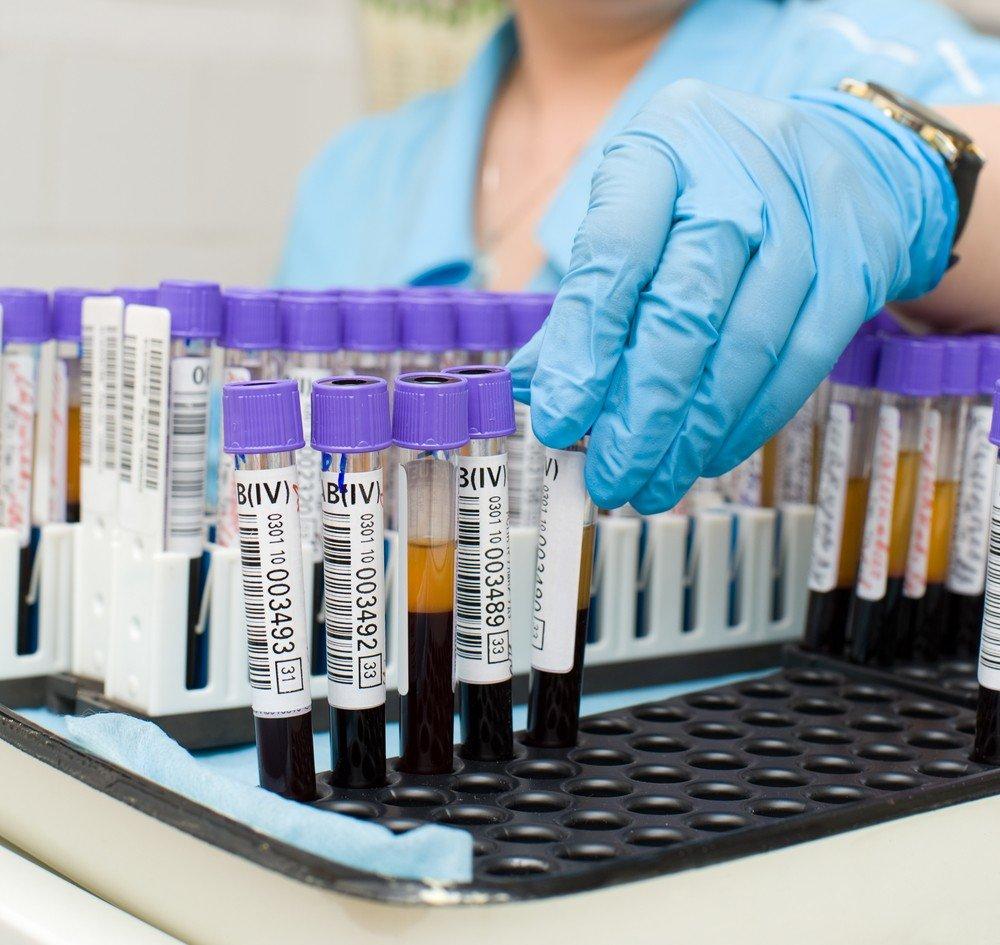 Анализ на 32 аминокислоты