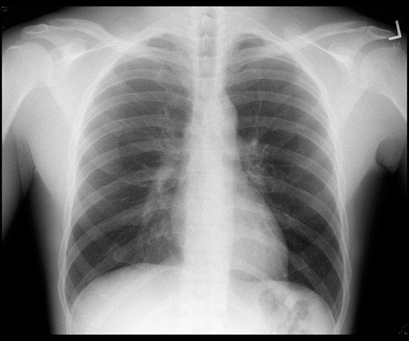 Результат рентегенографии органов грудной клетки