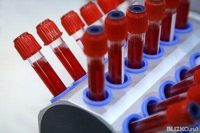 Антикардиолипиновый тест