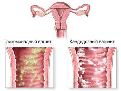 Секс повреждение слизистой оболочки матки