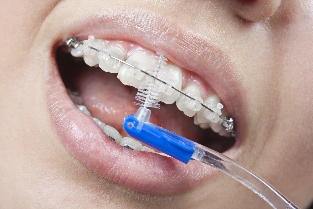 Профессиональная чистка зубов с брекетами